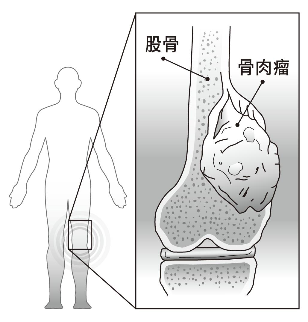 骨肉瘤生成位置示意圖